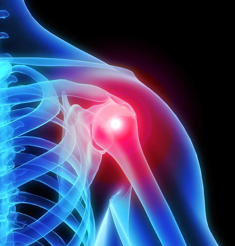 Axelproblem och smärta vid bänkpress